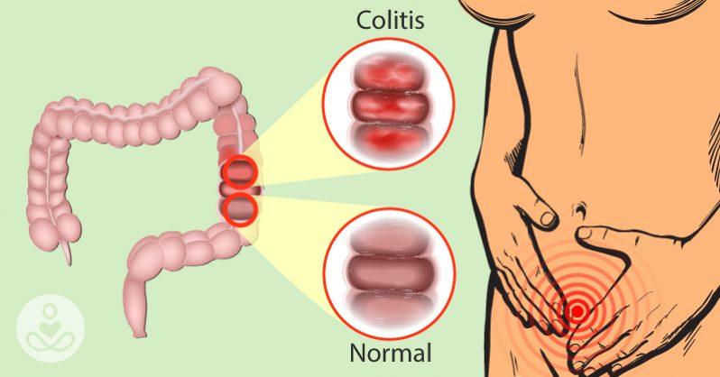 THS_June_26_Tue_07_Ulcerative_Colitis-798×418