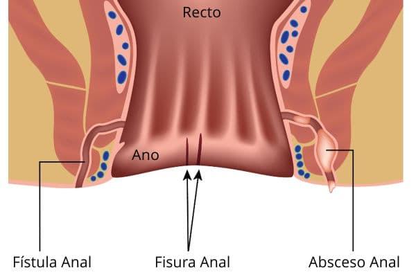 fisura-anal